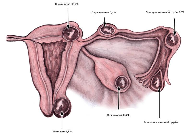 Почему получается внематочная беременность