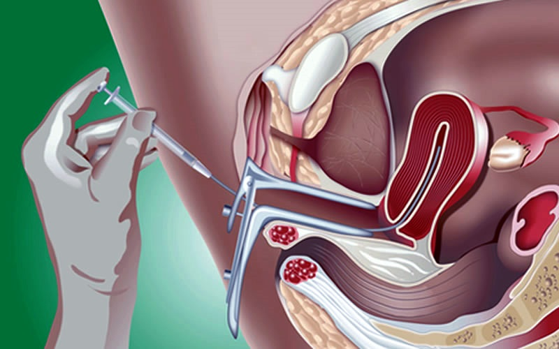 opisat-preparat-spermatozoida