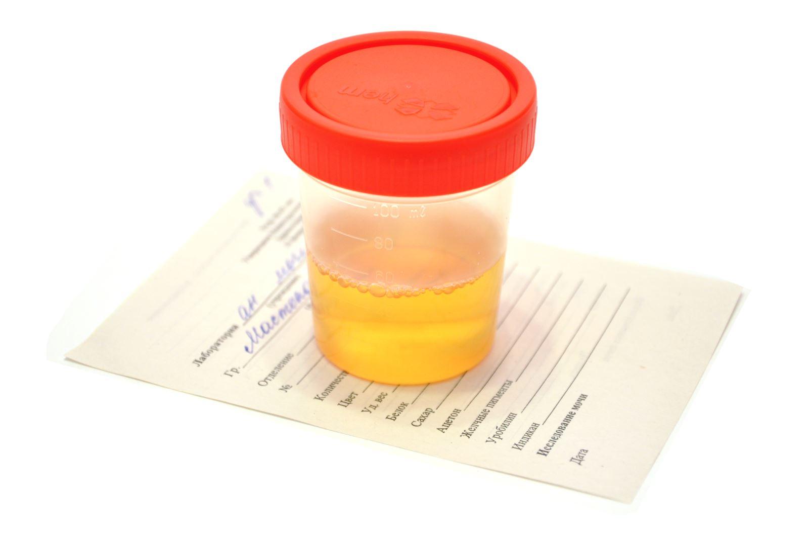 При беременности соли в моче