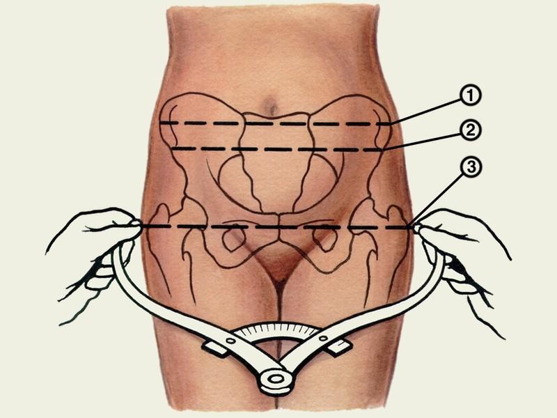 Индекс соловьева при беременности