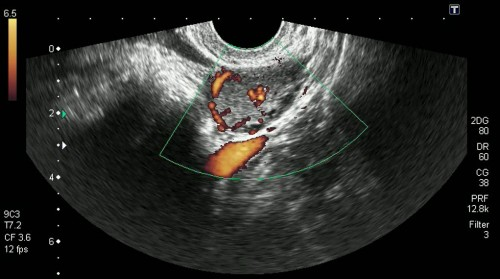 Желтое тело и беременность