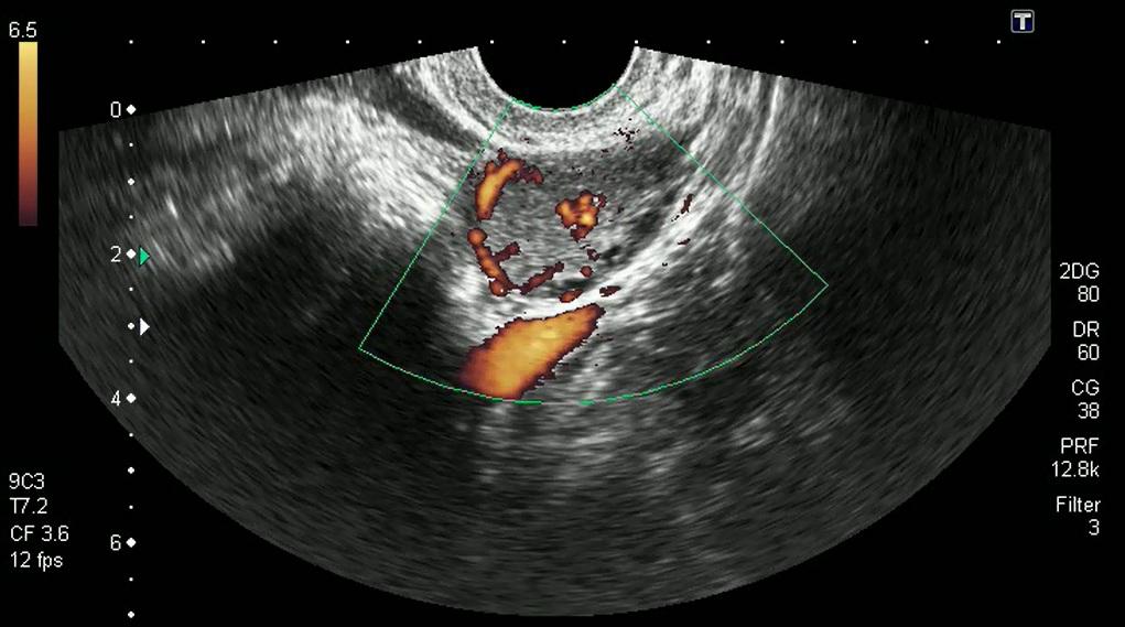 Жёлтое тело беременности