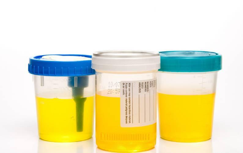 Повышение эритроцитов при беременности в моче