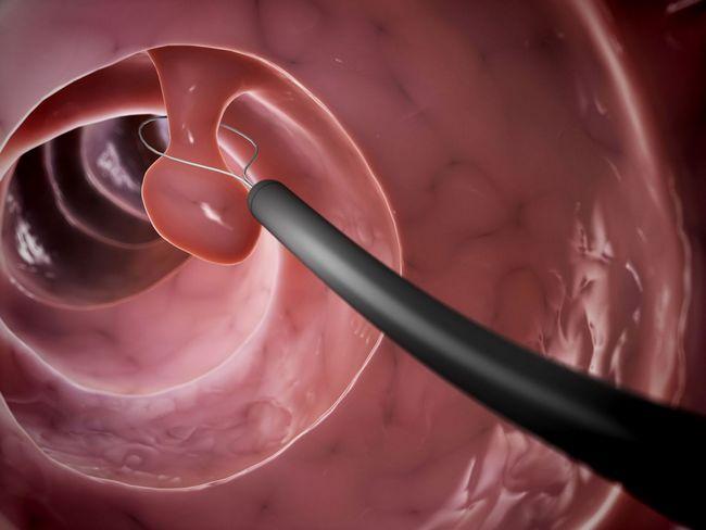 Длина цервикального канала при беременности