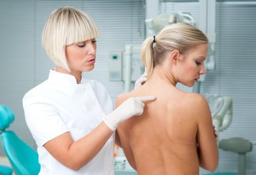 seboreyniy-dermatit-golovi-lechenie-otzivi
