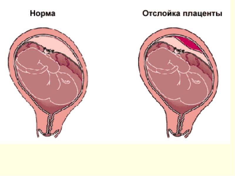 Причины отслойки плодного яйца на ранних сроках беременности
