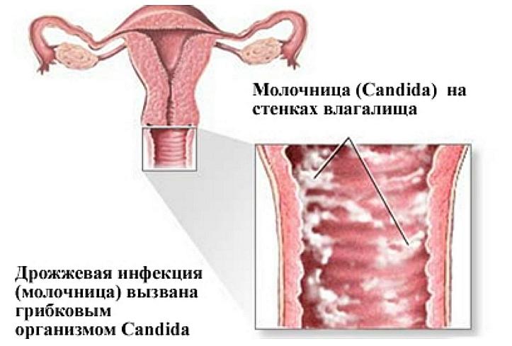 Лечение зуда половых губ в домашних условиях