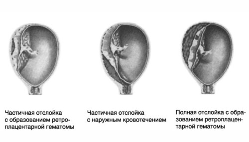 Отслоение плаценты на ранних сроках беременности