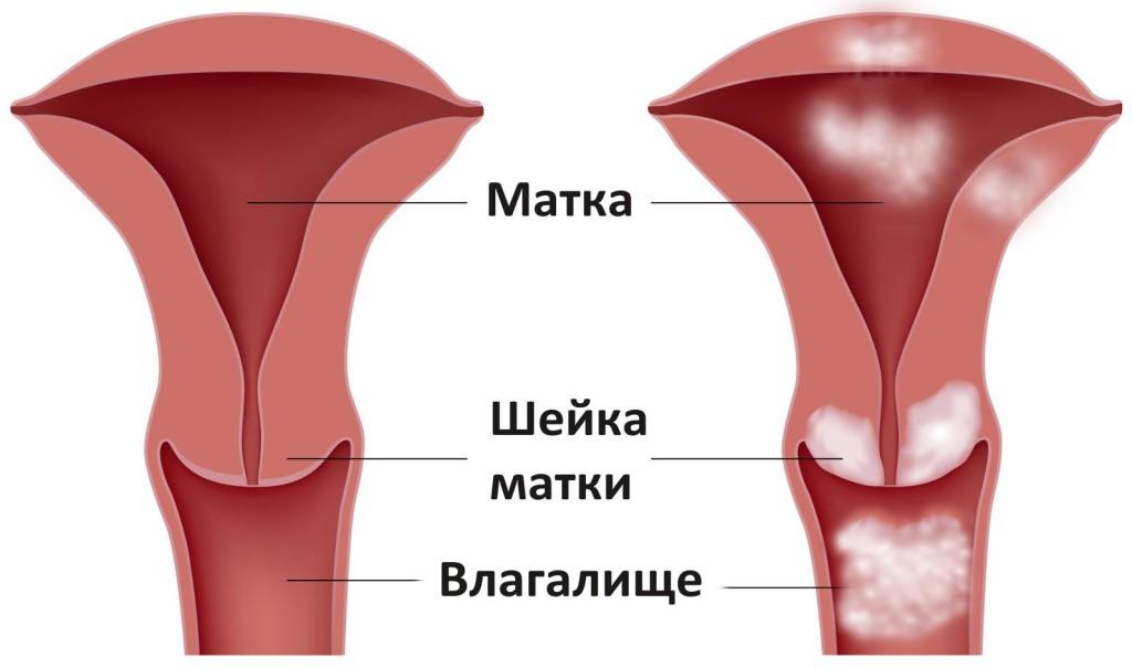 videleniya-iz-vlagalisha-fiziologicheskie