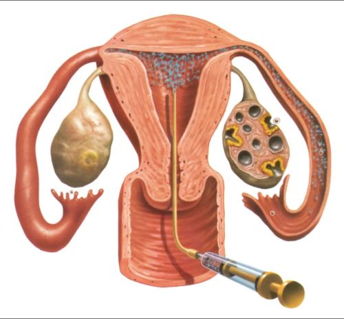 effektivnost-ii-donorskoy-spermoy