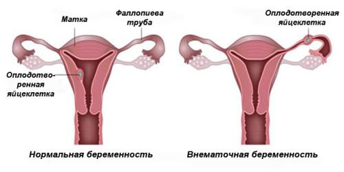 Почему болит яичник при беременности на ранних сроках
