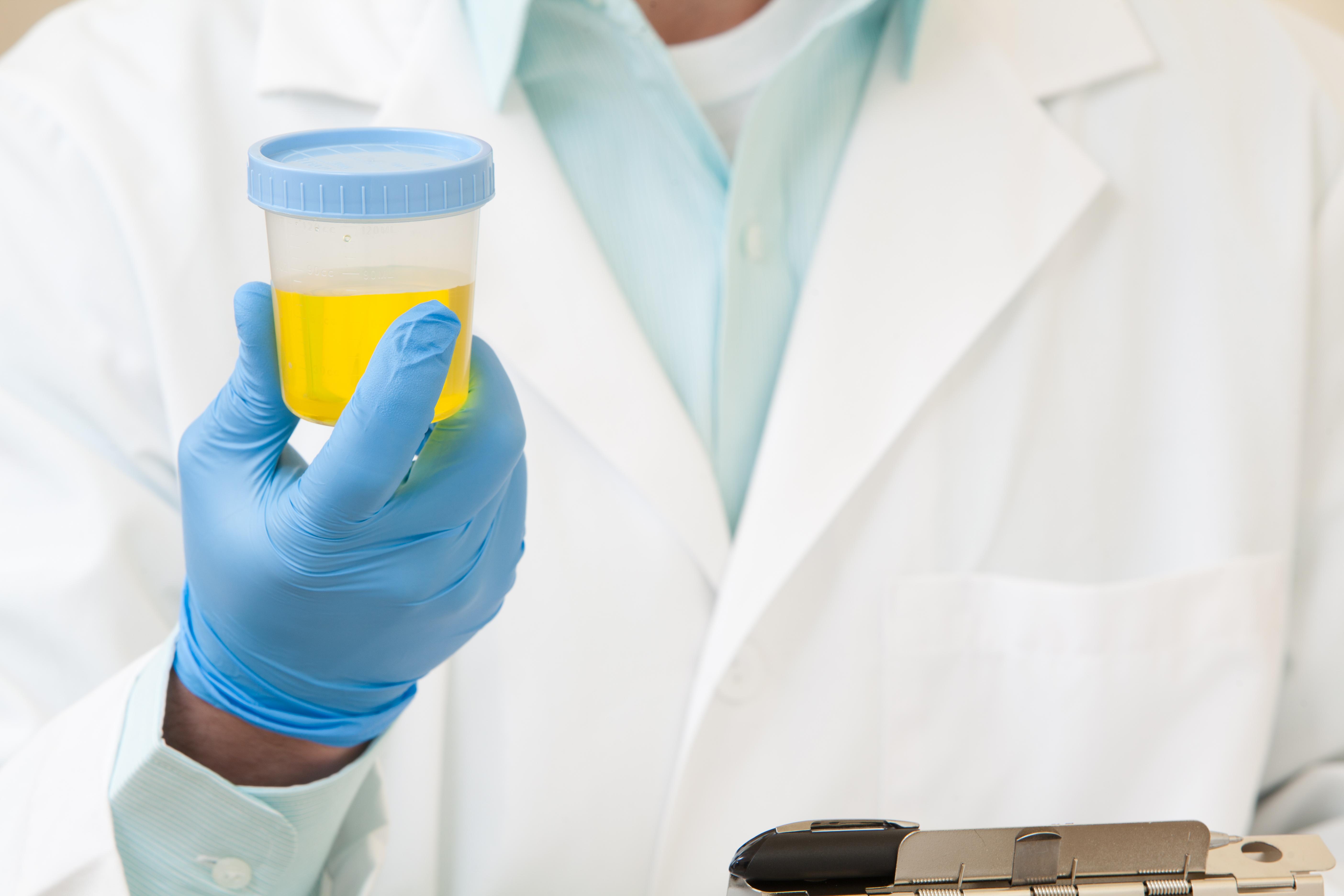bakteriologicheskoe-issledovanie-spermi