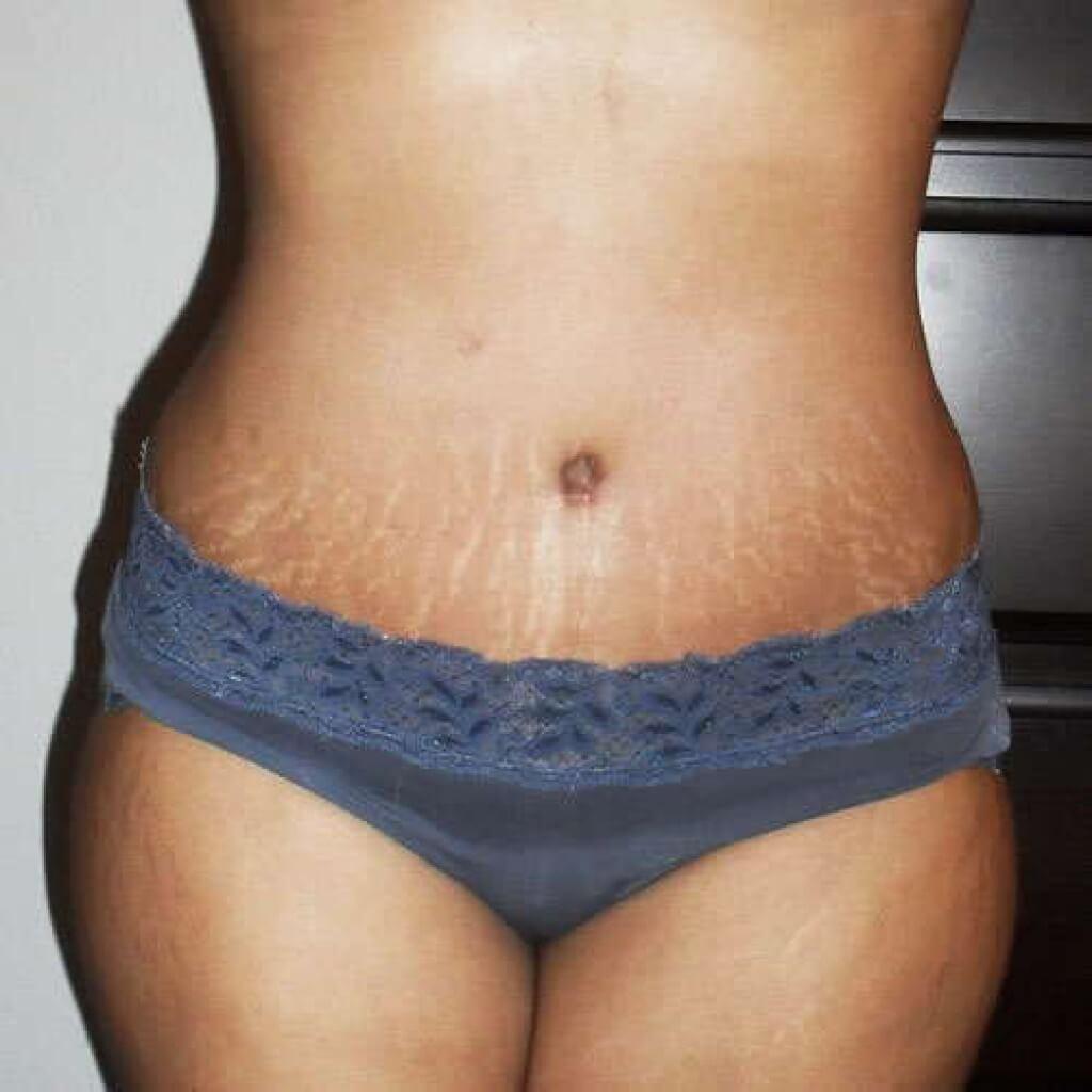 Как избежать растяжек во время беременности на животе