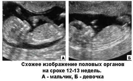 Форма живота при беременности девочкой