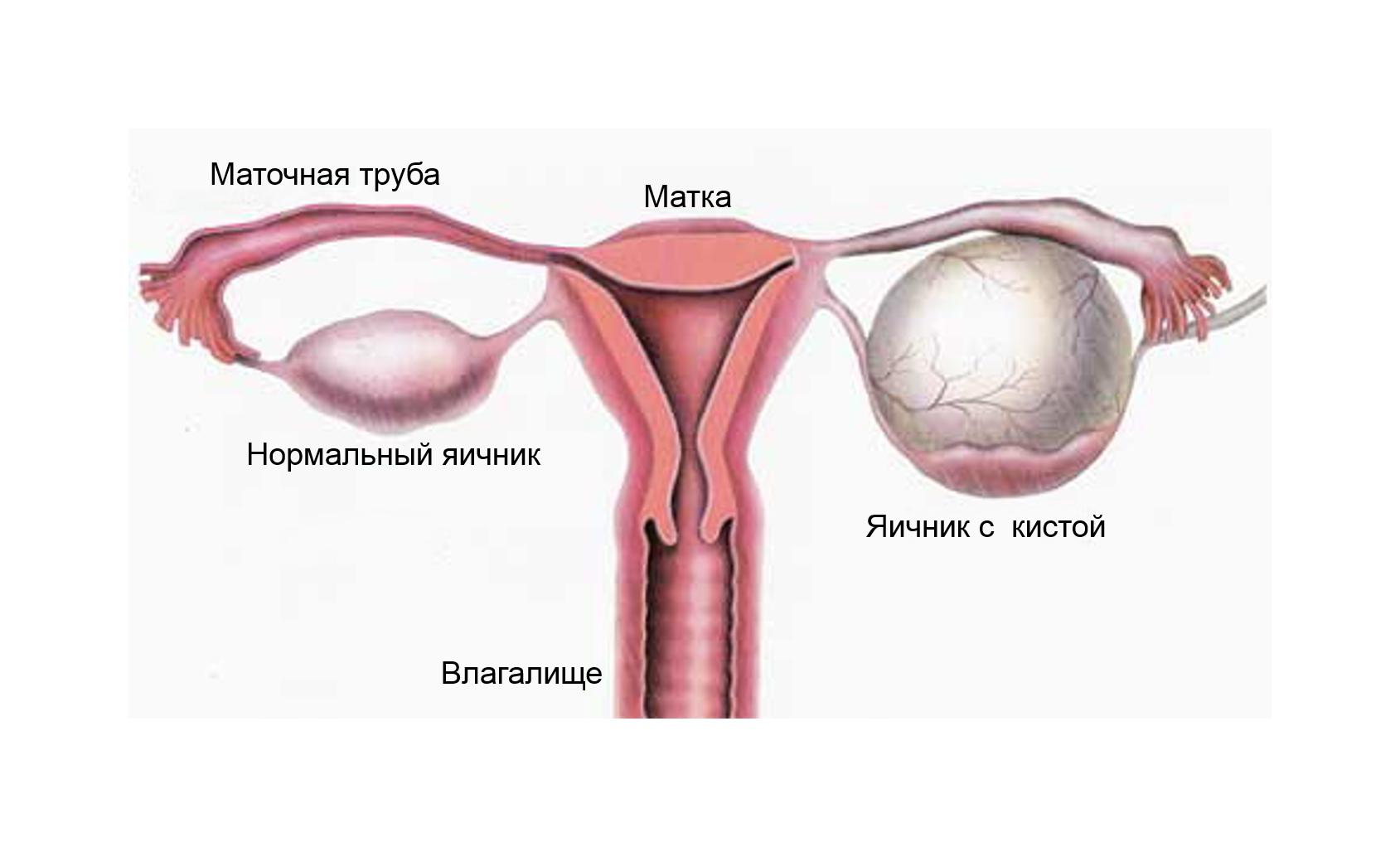 На ранних сроках беременности колит правый яичник