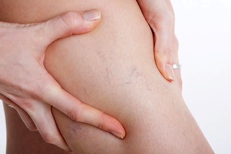 Флебодиа при беременности инструкция по применению