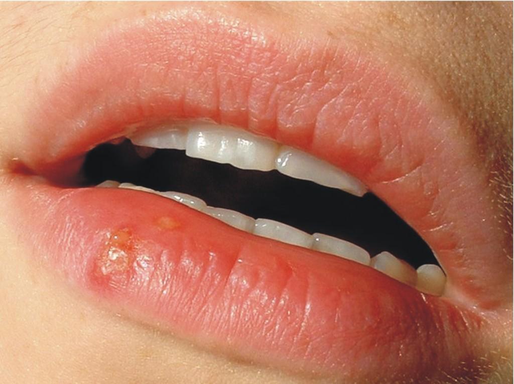 фото губ с герпесом
