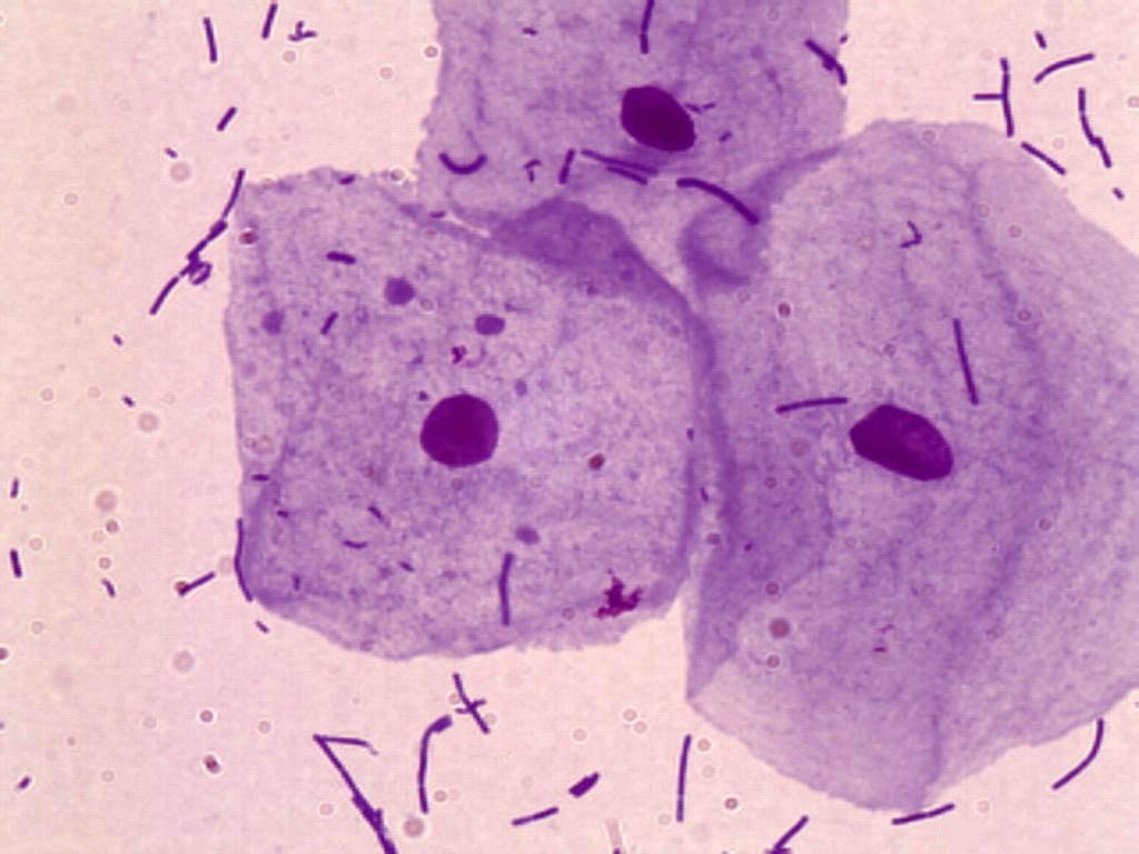 Лейкоциты в мазке при беременности. Норма лейкоцитов в мазке во время беременности. Причины повышенных лейкоцитов в мазке - Бере