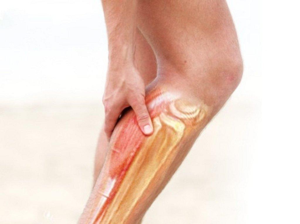 Болят икры ног при беременности на ранних сроках