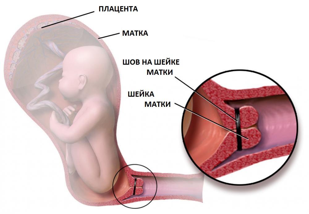 Цервикометрия при беременности что это такое