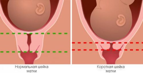 пять ицн при беременности и т3 Минет, Подчинение