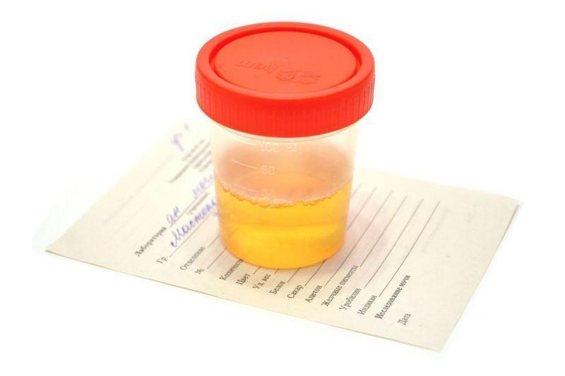 Суточный диурез при беременности таблица норма