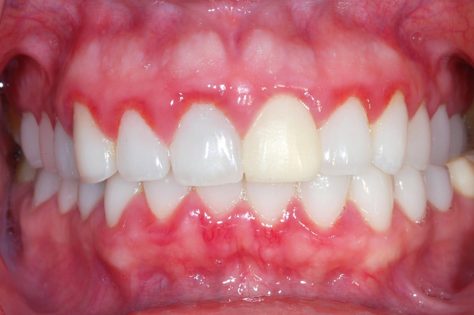 Чешутся зубы у беременных 80