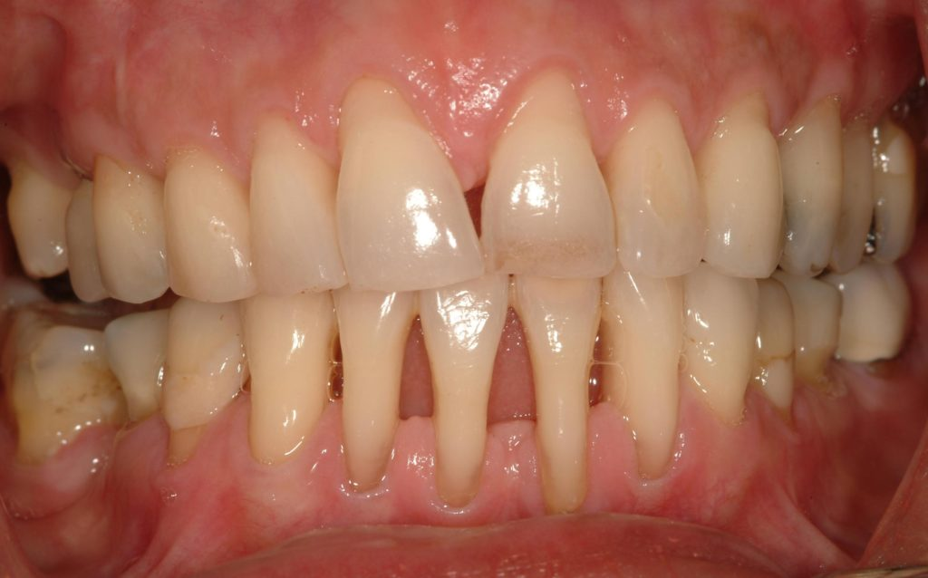 Как сохранить зубы во время беременности? Журнал Cosmopolitan