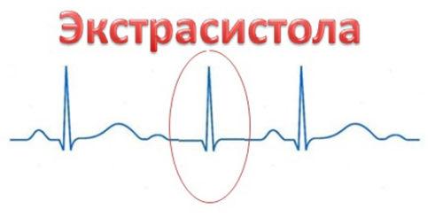 Синусовая аритмия сердца у беременной 26