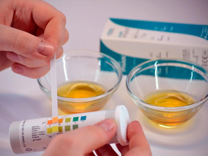Ацетон у беременных лечение в домашних условиях 36