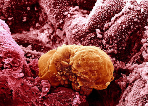 B0003308 6 day old human embryo implanting - coloured Credit: Yorgos Nikas. Wellcome Images images@wellcome.ac.uk http://images.wellcome.ac.uk 6 day old human embryo beginning to implant into the lining of the uterus (endometrium). As implantation progresses, the inner cell mass begins to form into the bilaminar disc. The two layers are called the epiblast and the hypoblast. An embryo that has been in culture for up to 14 days will remain at this stage of development. Such cultured embryos remain alive but do not progress as they would in the womb. Scanning electron micrograph Published: - Copyrighted work available under Creative Commons by-nc-nd 2.0 UK, see http://images.wellcome.ac.uk/indexplus/page/Prices.html