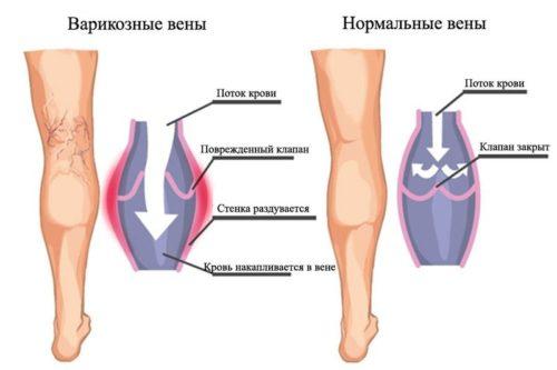 Варикоз при беременности — что делать, лечение. Варикоз половых губ, на ногах, варикоз малого таза при беременности