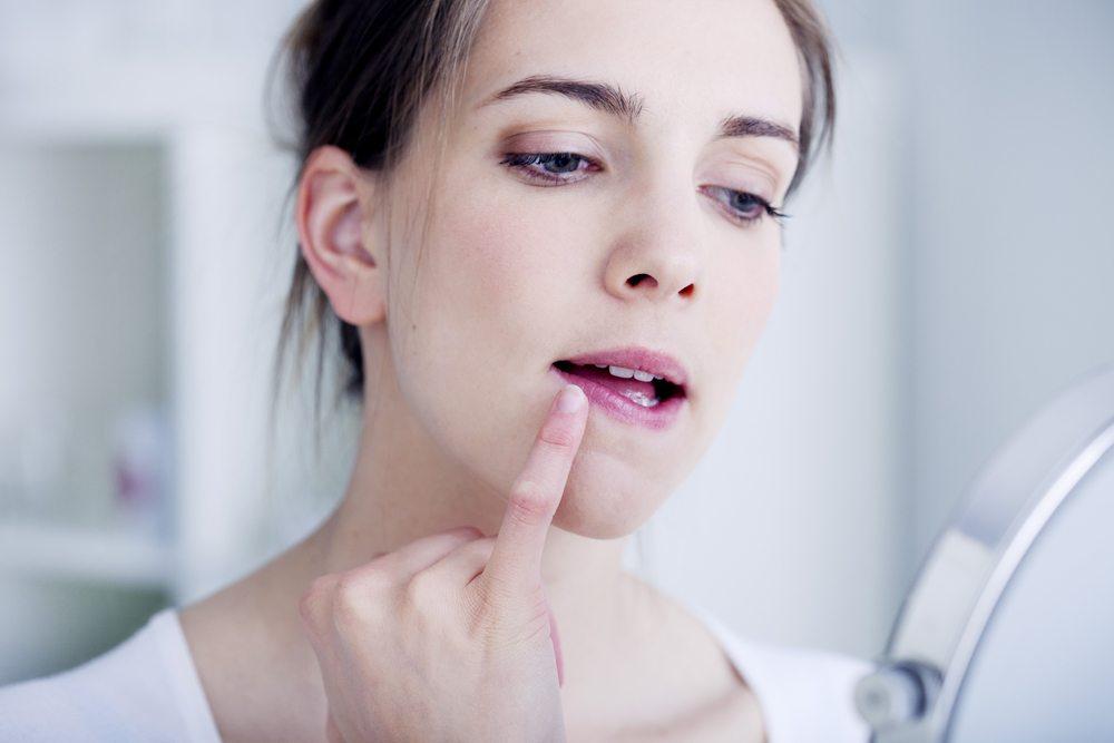 Как вылечить простуду на губе при беременности и не вызвать осложнений. Простуда на губе при беременности. Чем лечить герпес на губах при беременности