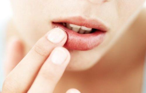 Простуда на губах при беременности 3 триместр