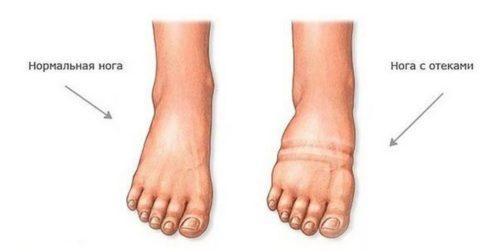 Болят ноги в жару при беременности thumbnail