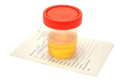 Суточная моча при беременности норма литров