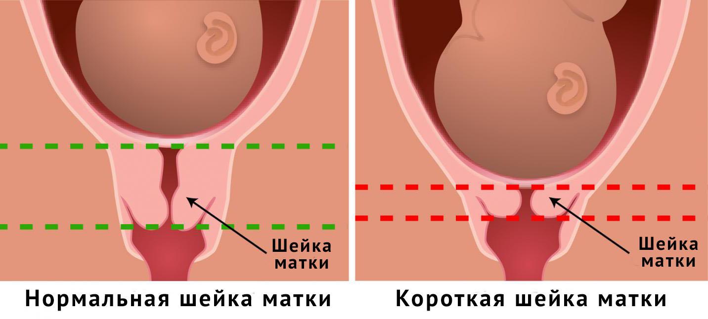Короткая шейка матки при беременности, что делать