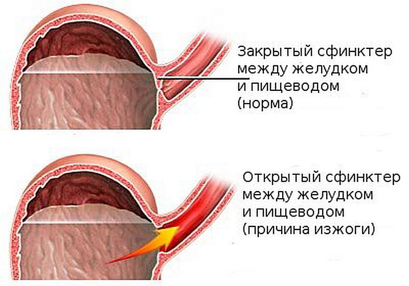 Народные средства от изжоги при беременности