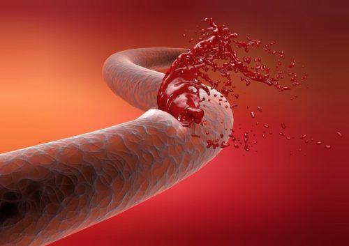 Низкие тромбоциты при беременности — функции тромбоцитов, их нормы при беременности, причины повышения и способы