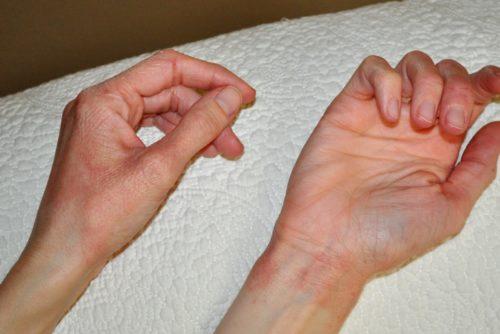 Сыпь на руках у беременной что делать