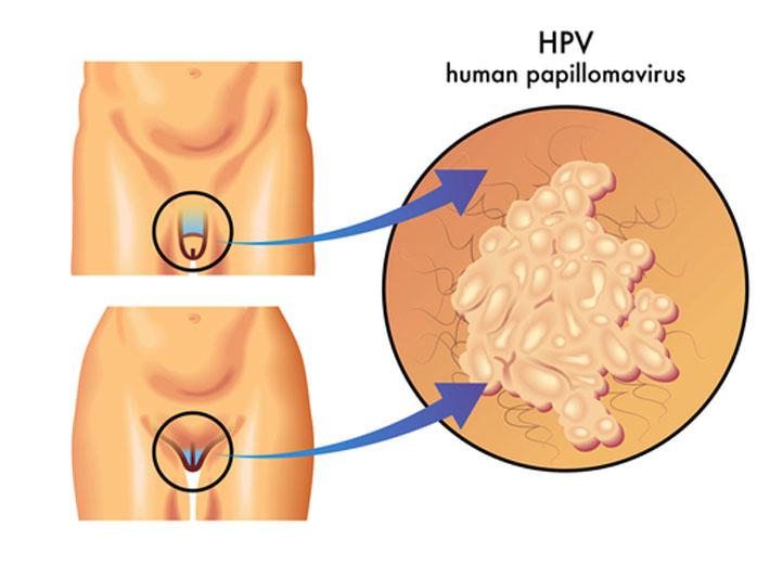 Анализ на ВПЧ при беременности. Что делать, если обнаружен ВПЧ во время беременности. Как ВПЧ влияет на беременность, возможные последствия. Лечение ВПЧ при беременности