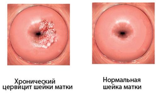Беременность при воспалении шейки матки