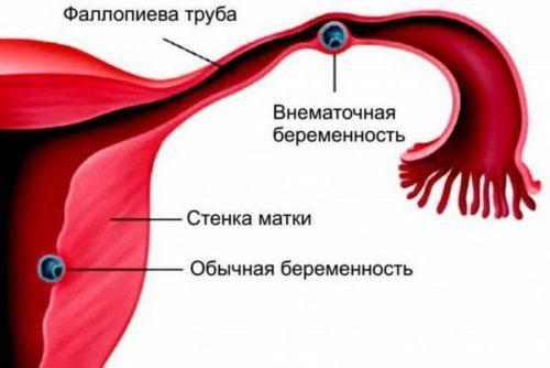 Как проходит операция по удалению внематочной беременности на раннем сроке
