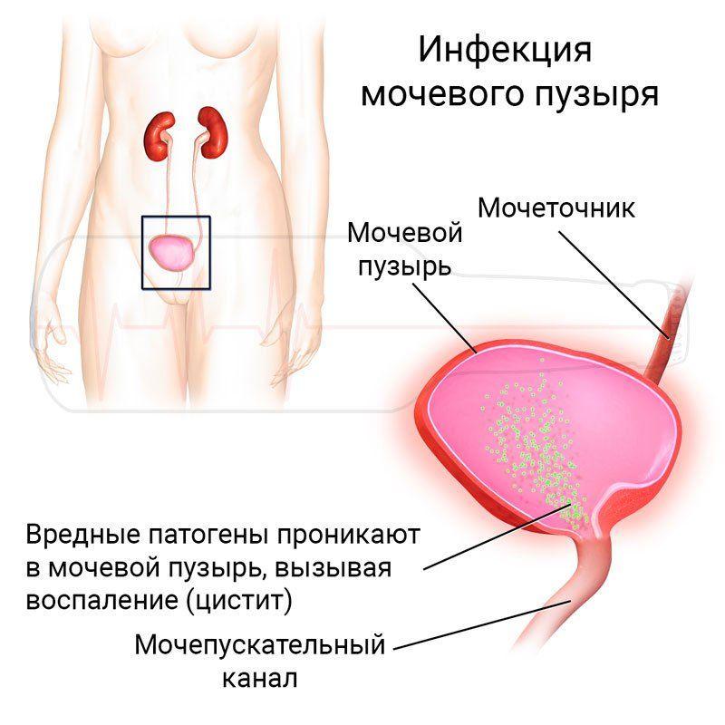 Влияние простатита на беременность прибор лечение простатита аденомы